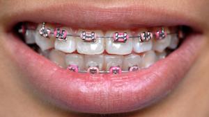 Traditional Braces McNamara Orthodontics