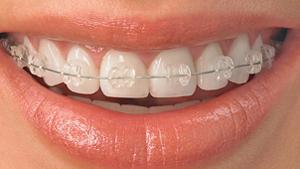 Ceramic-Braces McNamara Orthodontics