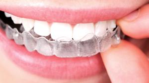 Invisalign Braces McNamara Orthodontics