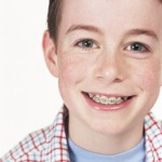 McNamara Orthodontics Ann Arbor MI Early treatment
