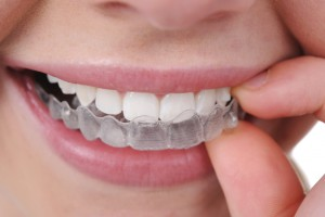 Invisalign myths Ann Arbor MI