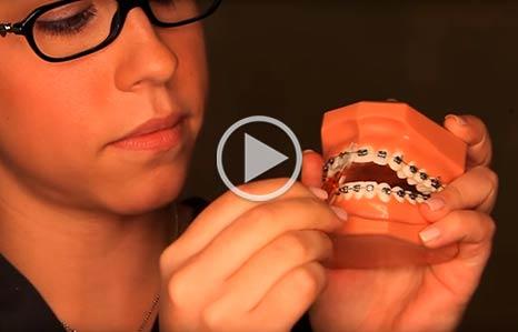 Wearing Braces McNamara Orthodontics in Ann Arbor, MI