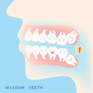 Wisdom Teeth Ann Arbor MI