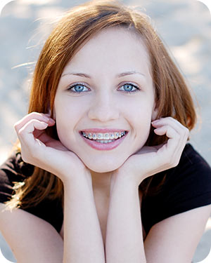 Adolescent Treatment 1 McNamara Orthodontics in Ann Arbor, MI