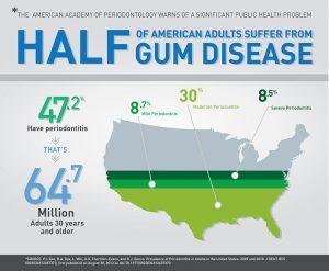Gum Disease Ann Arbor MI